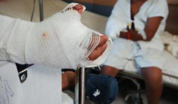 Al menos 36 personas quemadas por manipular pólvora en Honduras