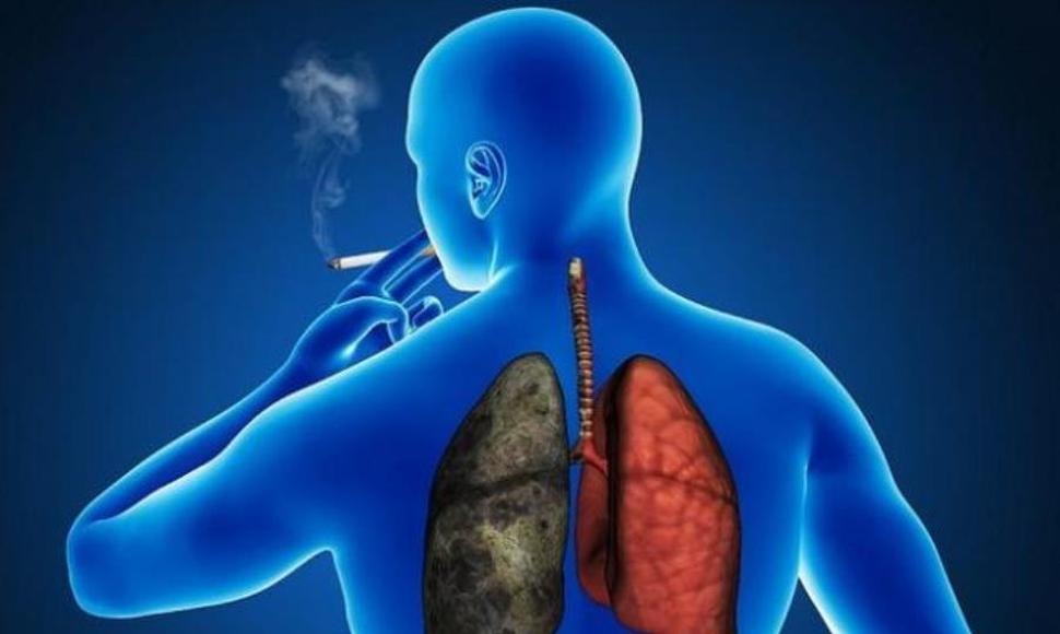 Estudiantes mexicanos desarrollan sistema para detección de cáncer de pulmón