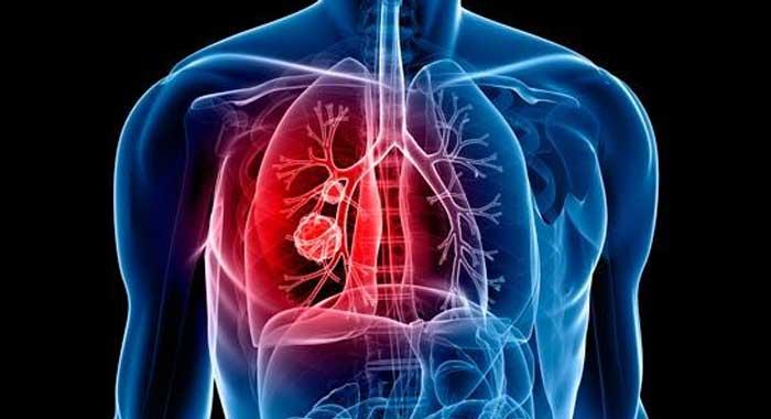 Inmunoterapia reduce riesgos en cáncer de pulmón con metástasis de hígado