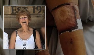Muere una mujer en Florida tras contraer la bacteria come-carne en una playa