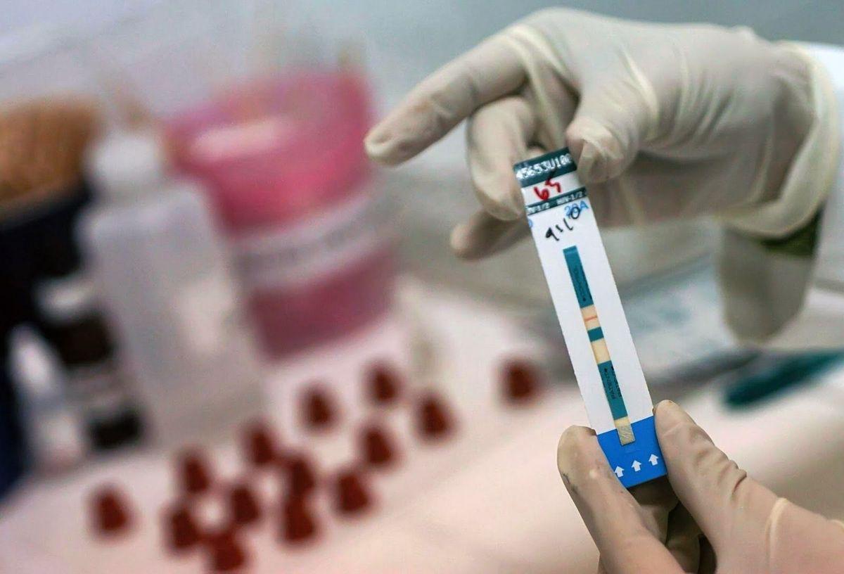 Un implante subcutáneo y una vacuna, nuevas herramientas para prevenir el VIH