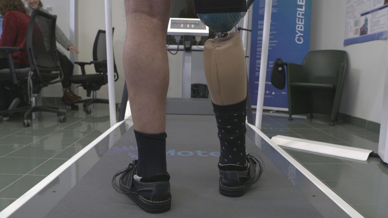 Una pierna artificial ayuda a sentir su uso
