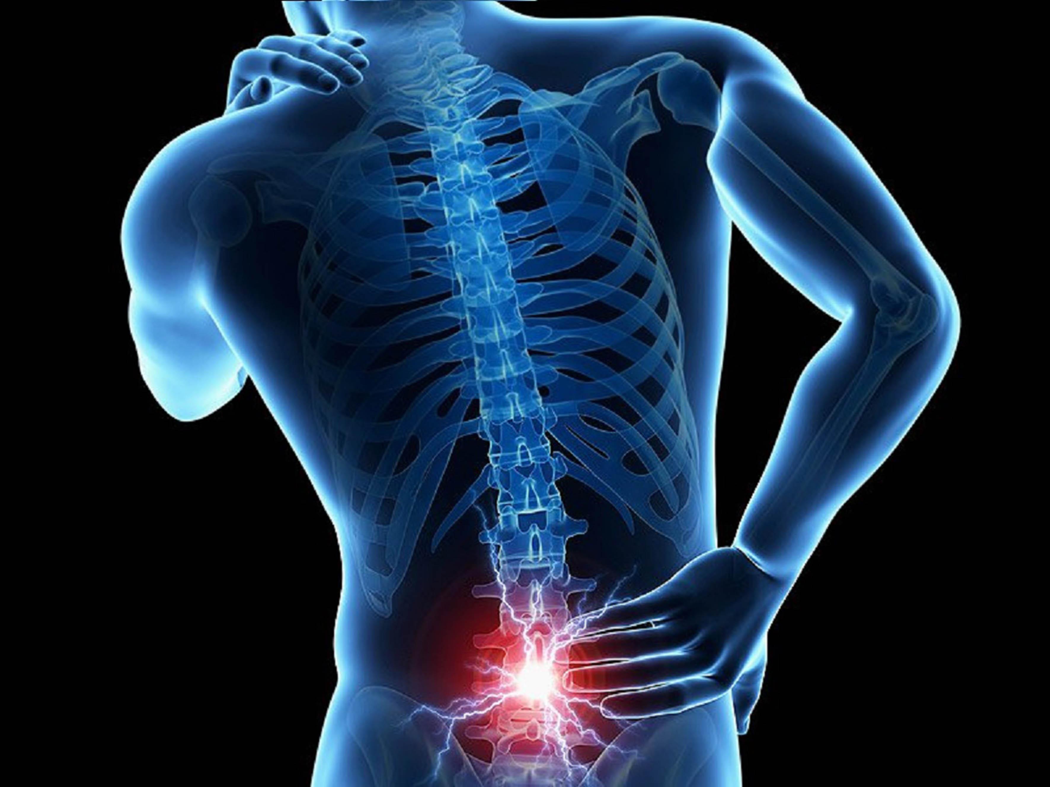Estudio revela plasma rico en plaquetas reduce dolor crónico de espalda baja