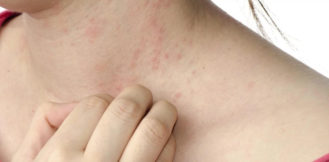 La psoriasis, un mal que afecta la piel y las emociones de quien la sufre