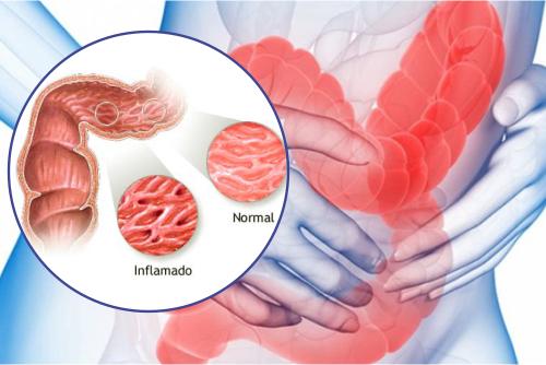 Síndrome del intestino irritable, ¿cómo se puede atenuar sus síntomas?