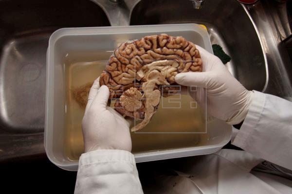 Latinoamérica cierra filas ante devastador impacto de los infartos cerebrales
