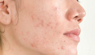 Diez mitos y realidades sobre el acné