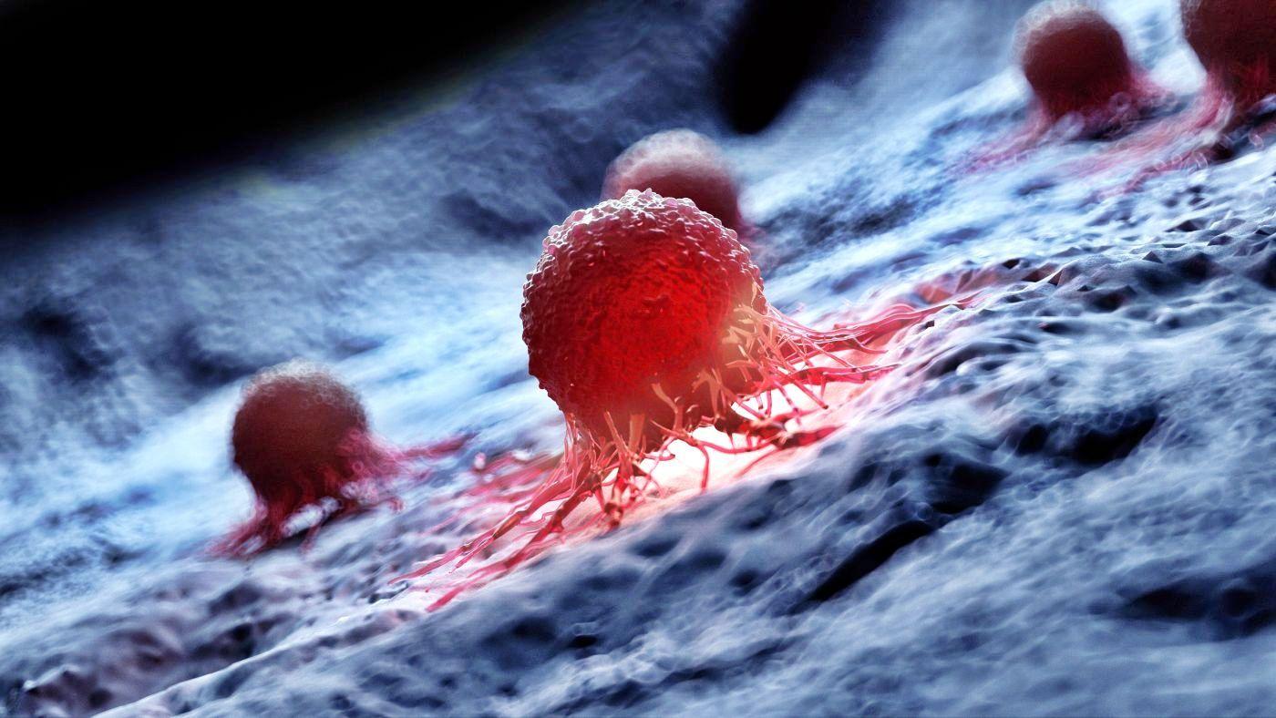 Innovaciones en abordaje de cáncer alimentan esperanza de encontrar una cura