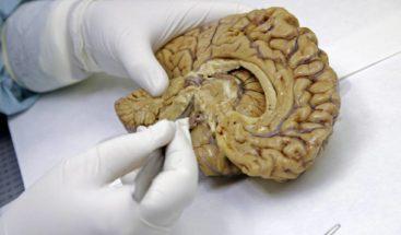 La ciencia abre una nueva vía contra los tumores cerebrales más agresivos