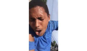 Hombre denuncia patrulla policial le fracturó la pierna