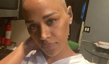 Cantante dominicana Anaís se raspa la cabeza y revela que es bipolar