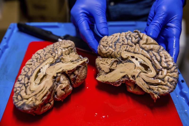 Estudio encuentra relación entre acumulación de hierro en cerebro y alzhéimer