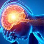 Científicos relacionan un tipo raro de inflamación cerebral con el COVID-19