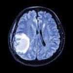 Una nueva plataforma agilizará la investigación en metástasis cerebral