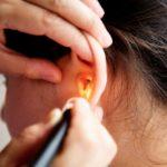 Identifican una variante genética hereditaria como causa de sordera
