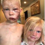 Niño de 6 años termina con 90 puntos tras salvar a su hermana de un perro