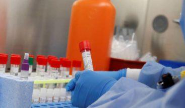 Ministro de Salud afirma se podrá dar salida a 13 mil muestras acumuladas en Laboratorio Nacional