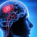 Descubren cómo algunos tumores cerebrales consiguen