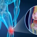 Científicos descubren mecanismo que podría servir para revertir la artrosis