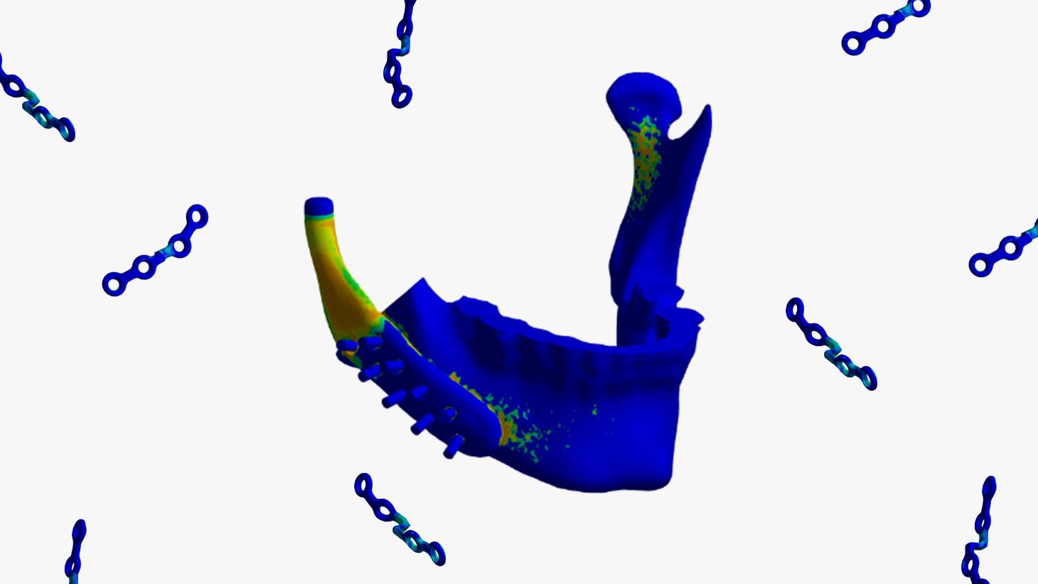Startup investe em simulação para se tornar referência no setor de implantes e próteses médicas customizadas