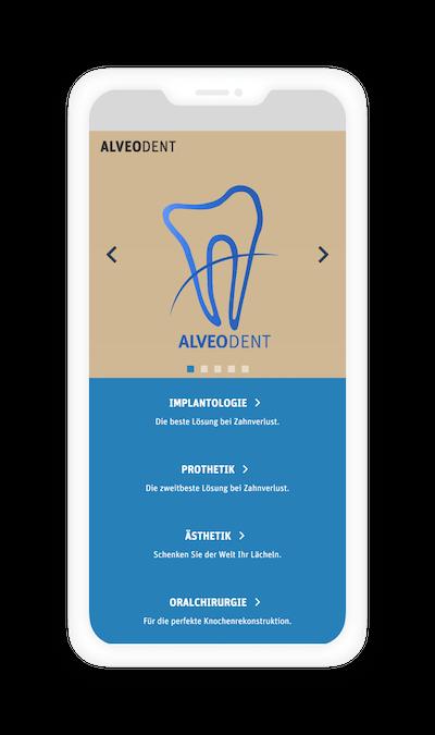 AlveoDent mobil verzió