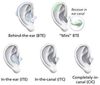 Styles of Hearing aids - 5 types of hearing aids. Behind-the-ear (BTE), Mini BTE, In-the-ear (ITE), In-the-canal (ITC) and Completely-in-canal (CIC)