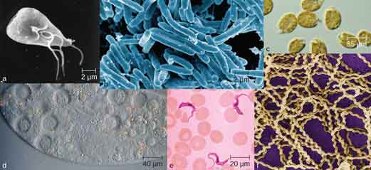 Photos of various mirobes. A) a triangular cell approximately 10 µm long with long flagella. B) Many rod shaped cells approximately 10 µm long. C) Round cells approximately 85 µm in diameter. D) a portion of a large oval over 200 µm in length with smaller spherical structures inside. E) Long, ribbon shaped cells approximately 20 µm in length. F) Many long spiral cells.