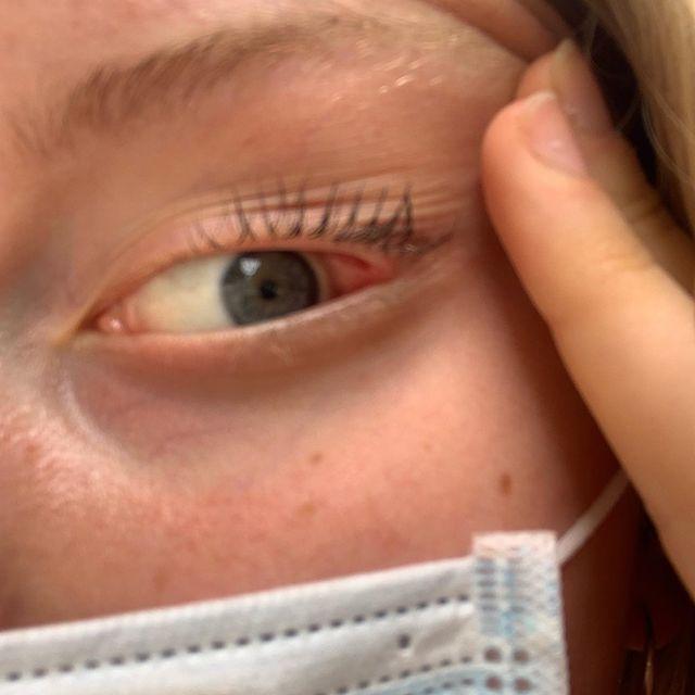 Fredes øje spiste en flue som vi ikke kunne få ud igen fordi Fredes øjne er endeløse