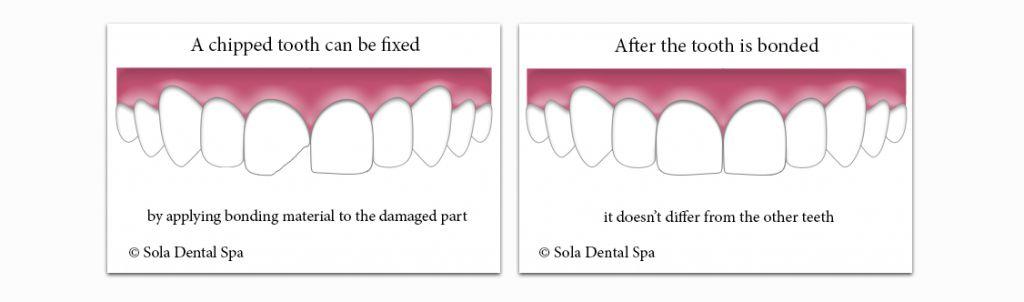 Chipped teeth and dental bonding