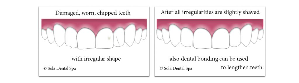 Cosmetic teeth contouring of damaged, worn teeth with spme chips