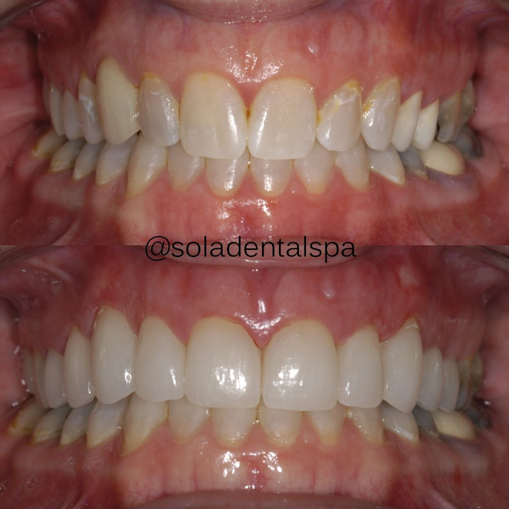 Doria Before and after veneers