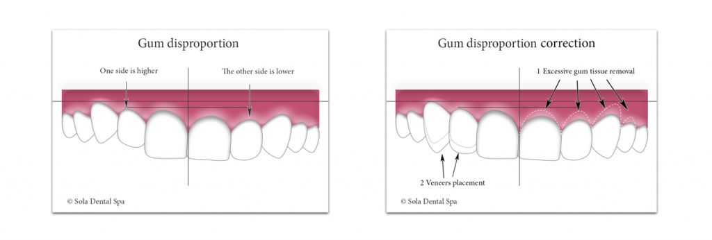 smile correction - gum disproportion correction - Sola Dental Spa