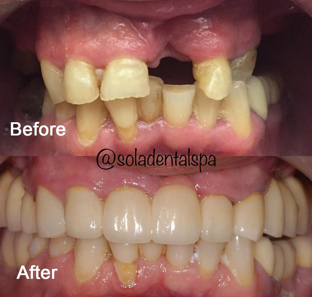 Dental implant and crowns before and after