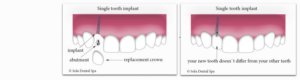 Single tooth implant in Staten Island NY