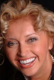 Oksana veneers - Sola Dental Spa