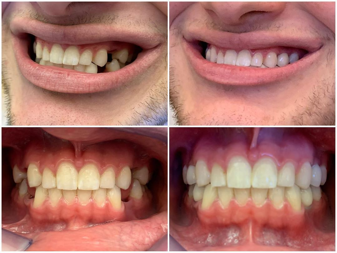 Dental implants in Staten Island - Sola Dental Spa