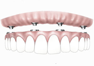 All on four dental implants / Full arch implants