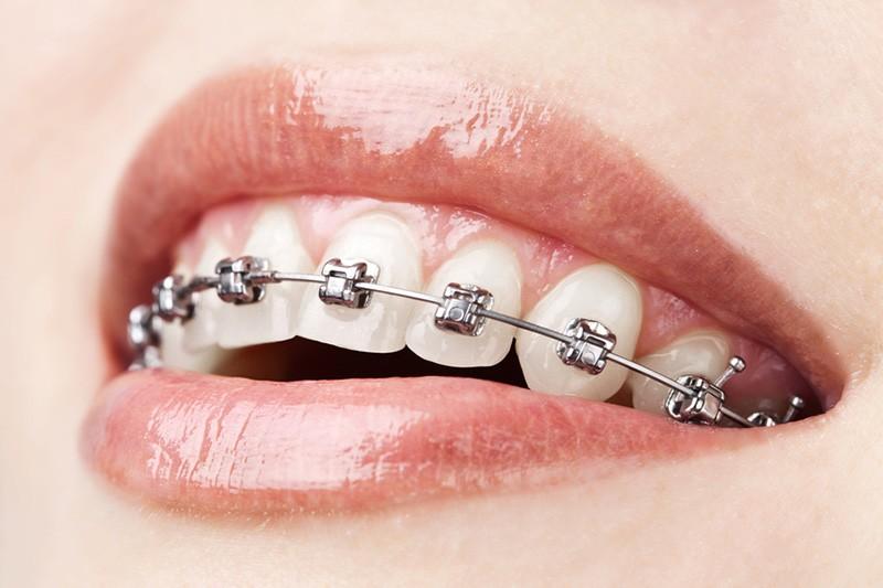 Metal braces Staten Island