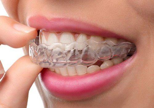 invisalign - invisible braces