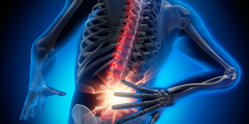 Inflamed, painful back