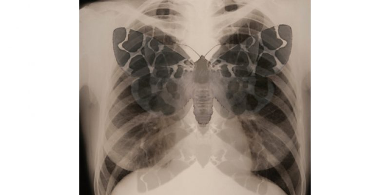 Superimposed xray image of moth and chest