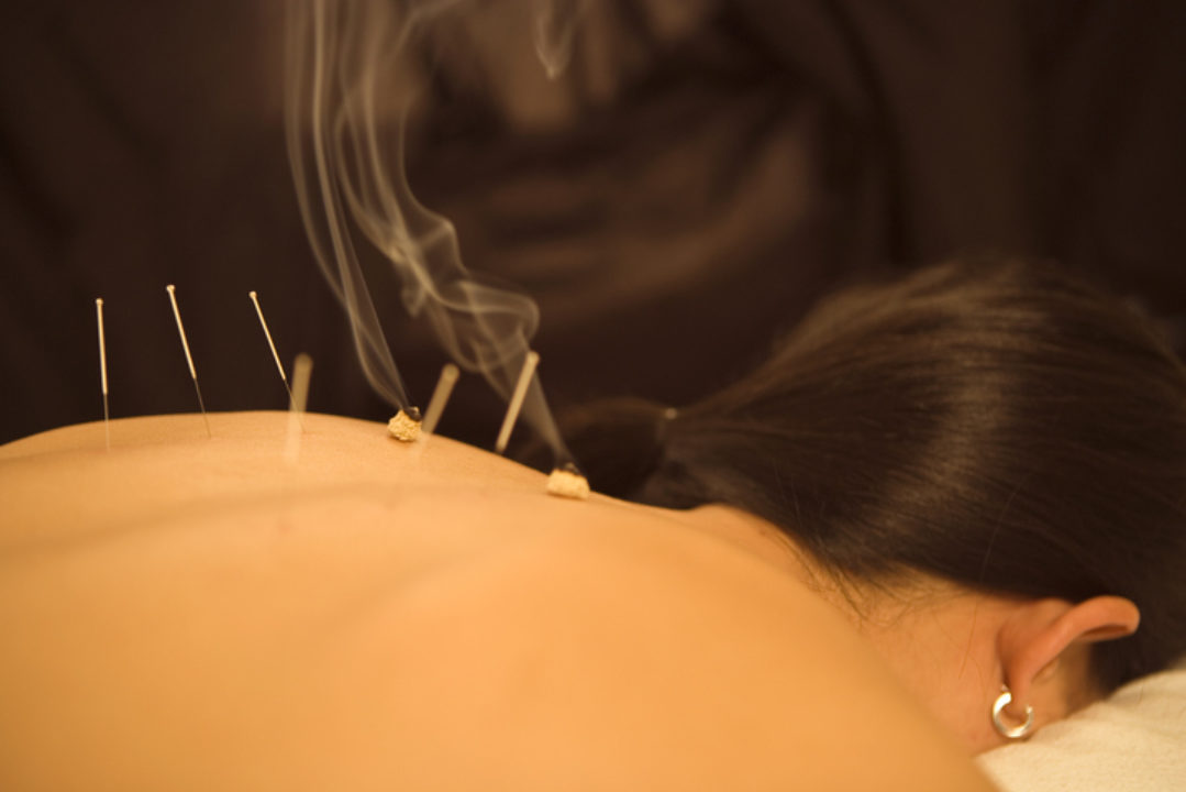 Woman receives acupuncture and moxibustion