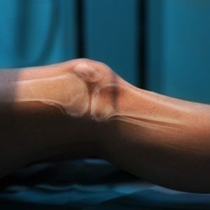 Chronic inflammation can occur in the joints and bones like the knee