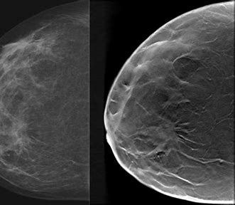 3D Mammagraphy