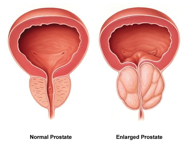 prostate hypertrophie