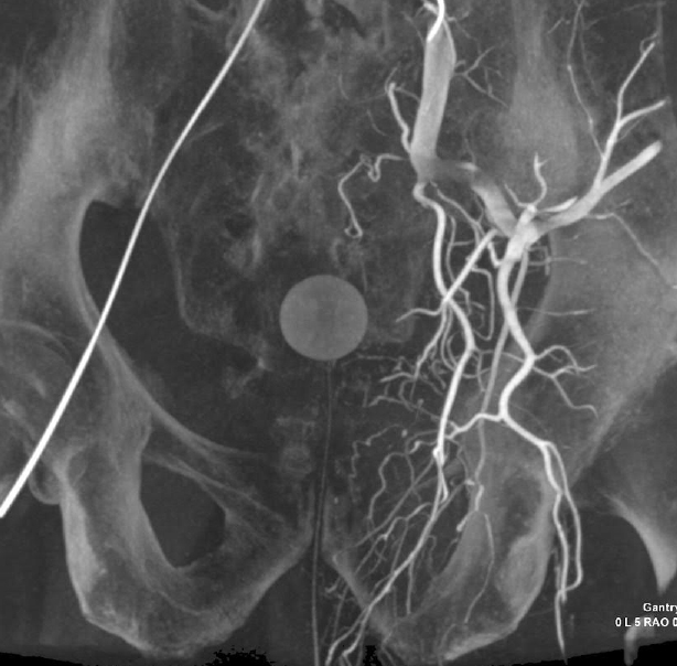 Intra-procedural 3 Dimensional CT Angiogram