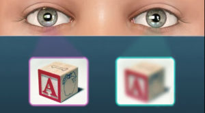 http://talleyeyecare.com/eye-conditions/amblyopia/