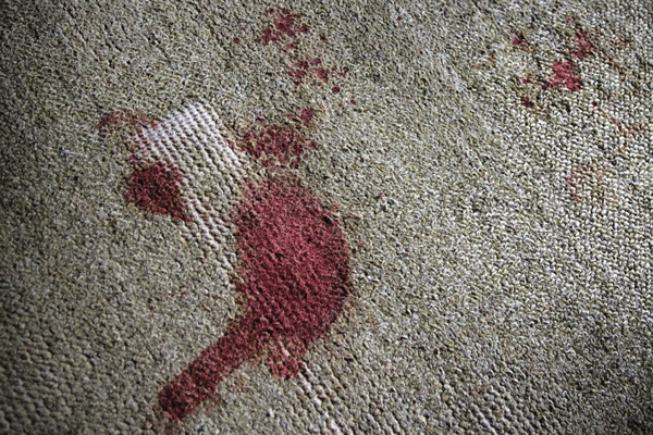 Carpet-blood-stain