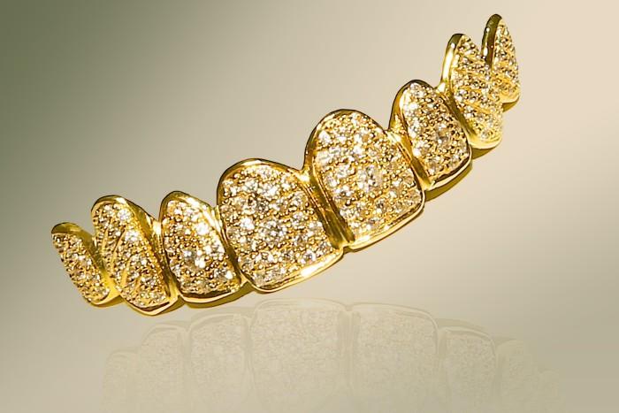 Gold and Diamond Denture