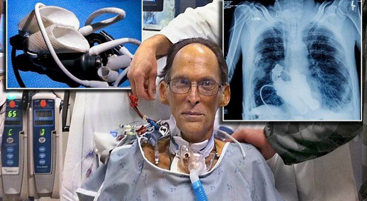 Meet The World's First Heartless Human (Literally) Able To Live Without A Pulse